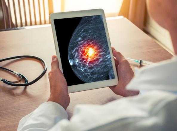 Tumore al seno, l'intelligenza artificiale potenzia la diagnostica