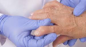 Artrite reumatoide, approvata da AIFA una nuova formulazione sottocutanea