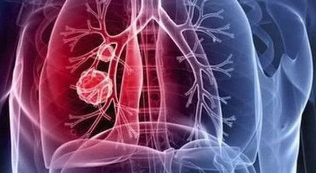 Tumore polmonare non a piccole cellule, via a studio clinico per nuovo trattamento