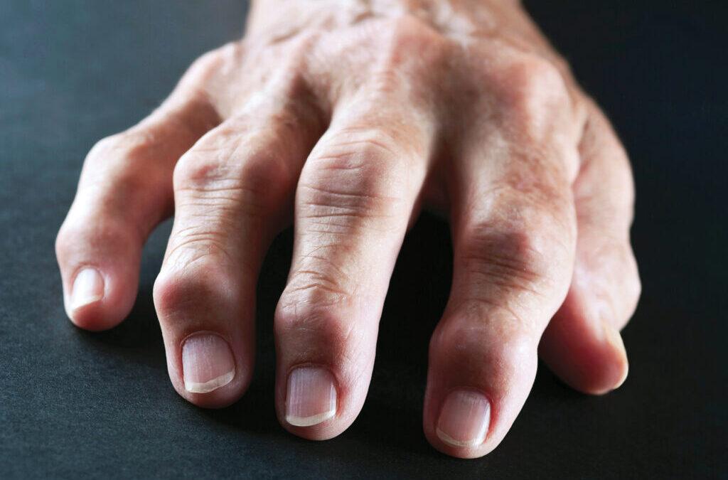 Artrite reumatoide, i vantaggi della nuova formulazione sottocute