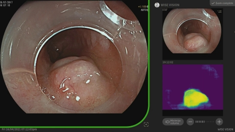 Neoplasie all'esofago di Barrett, l'intelligenza artificiale di Nec aiuta i medici durante le procedure endoscopiche