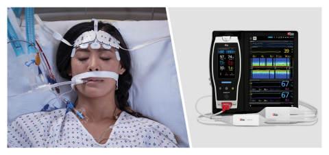 In arrivo un dispositivo che monitora i pazienti in terapia intensiva colpiti da shock settico e prevedere la mortalità