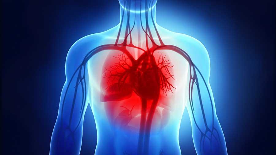 Abiomed rileva preCardia, azienda che crea dispositivi medici per pazienti con insufficienza cardiaca
