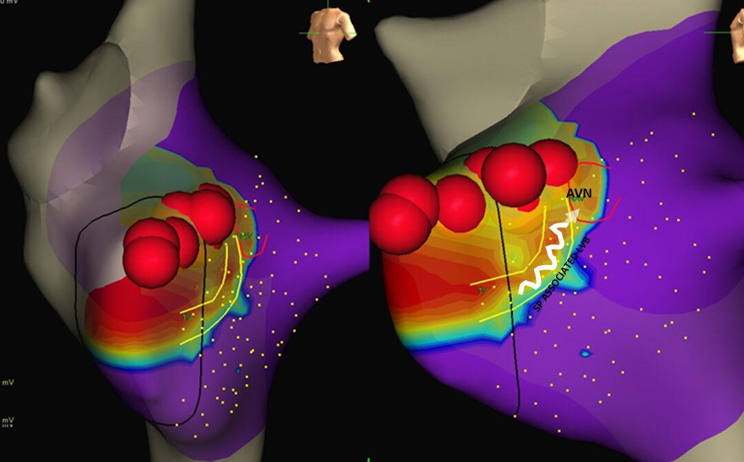 Tachicardie, nuova tecnica di ablazione più precisa con la mappa del voltaggio elettrico del cuore