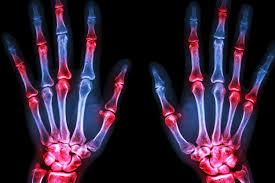 Remissione artrite reumatoide possibile se la diagnosi è precoce