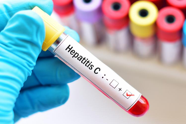 """Giornata mondiale delle epatiti: """"Dopo la pandemia l'Italia non è più in linea con l'obiettivo Oms di eliminare l'Epatite C entro il 2030"""""""