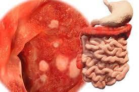 Malattia di Crohn e colite ulcerosa, pronta una nuova somministrazione sottocutanea